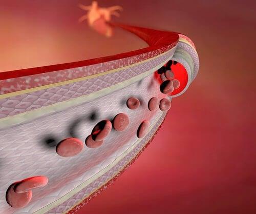 Heikot verisuonet