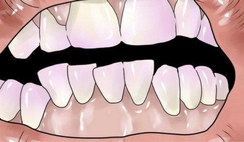 Eroon hammasplakista luonnollisesti