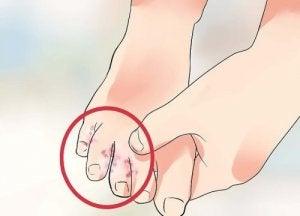 7 luonnollista hoitoa jalkasieneen