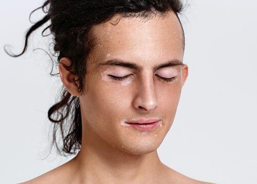 valkopälvi kasvoissa