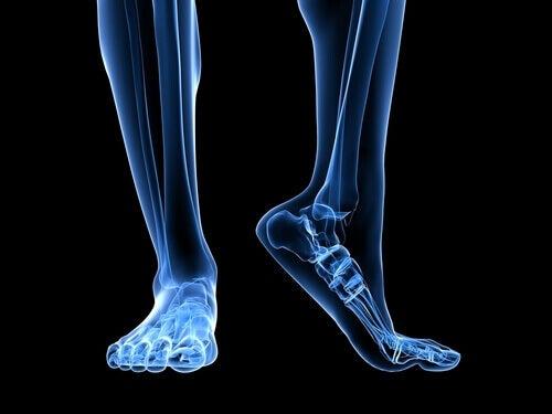 Jalkojen anatomisella rakenteella on vaikutusta plantaarifaskiitin syntyyn.