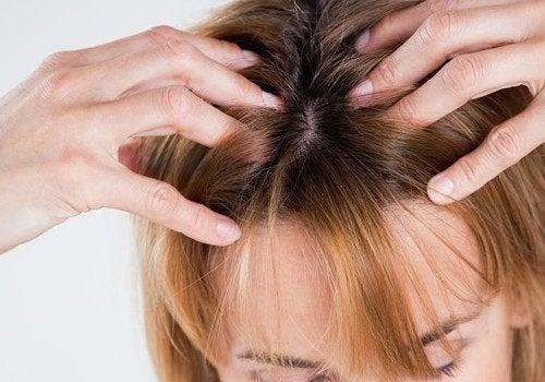 hiero päänahkaa hiustenlähdön estämiseksi