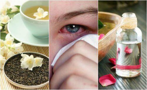 Hoida silmätulehdusta näillä 5 luontaishoidolla