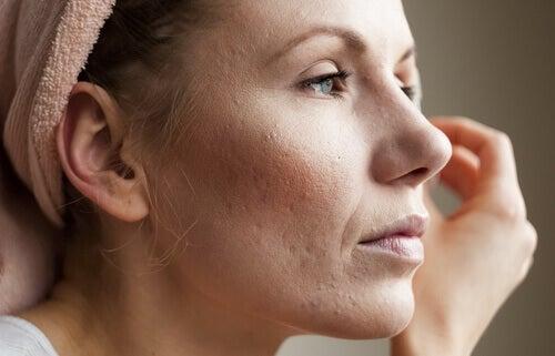 liika kortisoli aiheuttaa iho-ongelmia