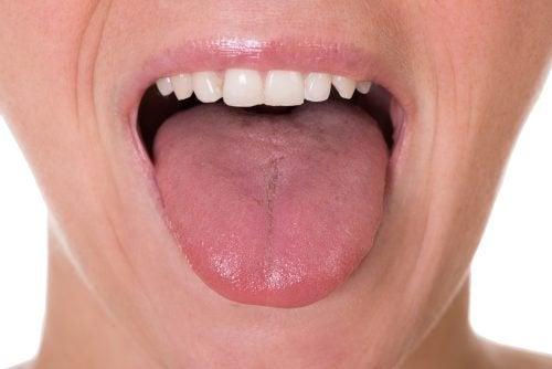 Kielisyövän viisi ensimmäistä merkkiä