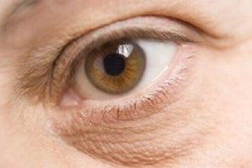 turvonneet silmänalukset voivat olla ravinnepuutosten merkki