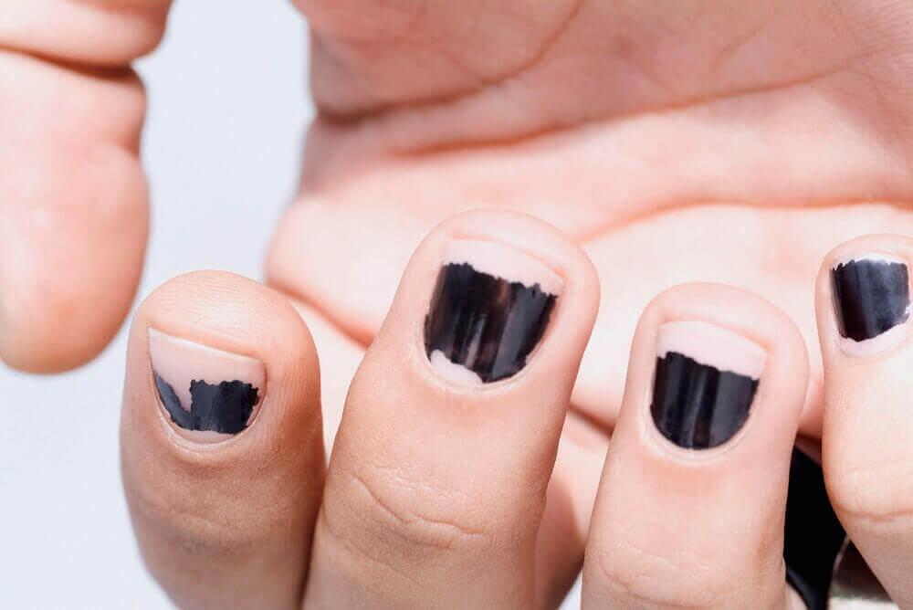 kynsilakan poisto vaikuttaa kynsien haurauteen