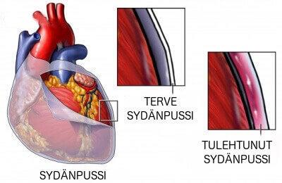 tulehtunut sydänpussi