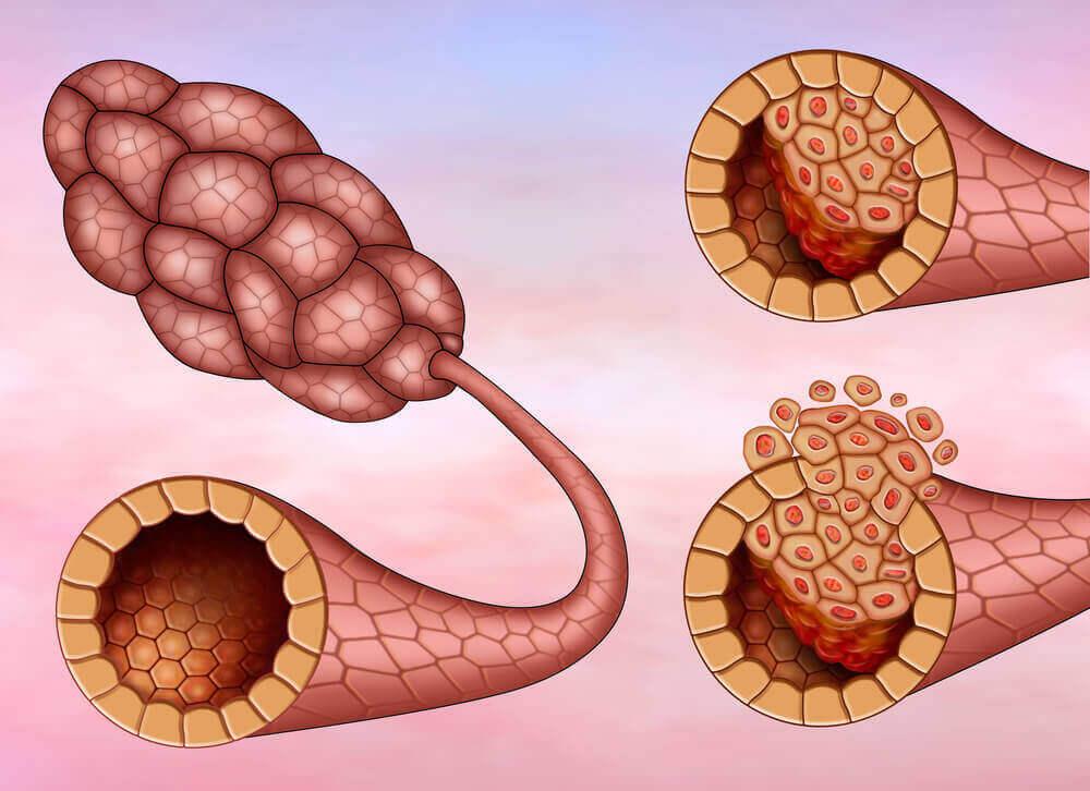 rintasyöpätyypit