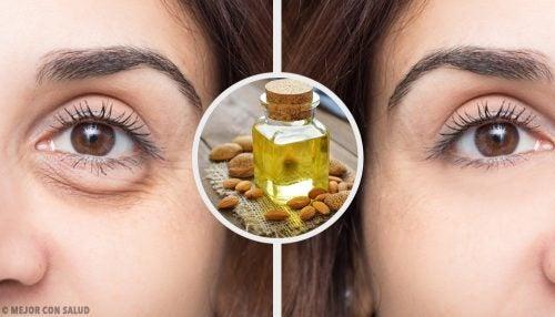 4 naamiota tummien silmänalusien häivyttämiseksi ja silmien rentouttamiseksi