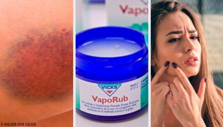 11 yllättävää tapaa käyttää Vicks VapoRubia