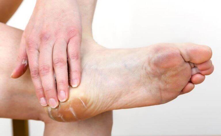 kosteusvoidetta jalkoihin