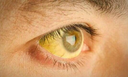keltaiset silmät voivat olla merkki tulehtuneesta maksasta