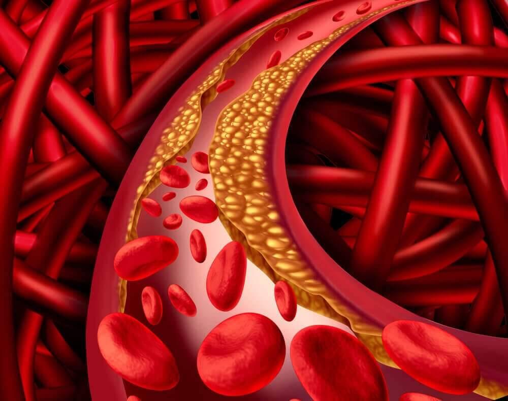 kolesterolia verisuonessa