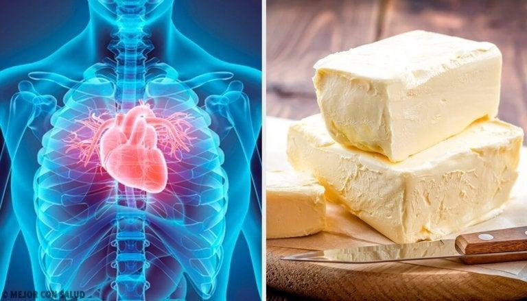 5 sydämelle hyvin haitallista ruokaa