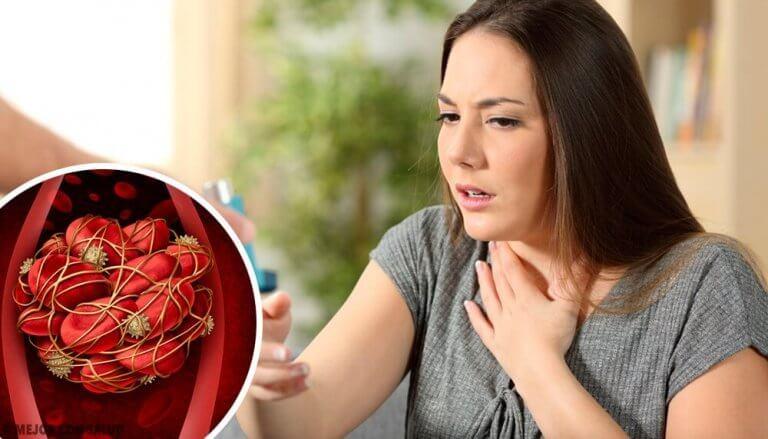 8 hälyttävää merkkiä verihyytymistä