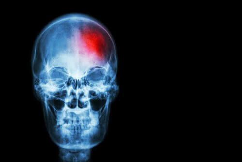 punainen täplä aivoissa