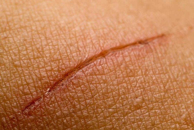 peltokorte auttaa haavojen hoidossa