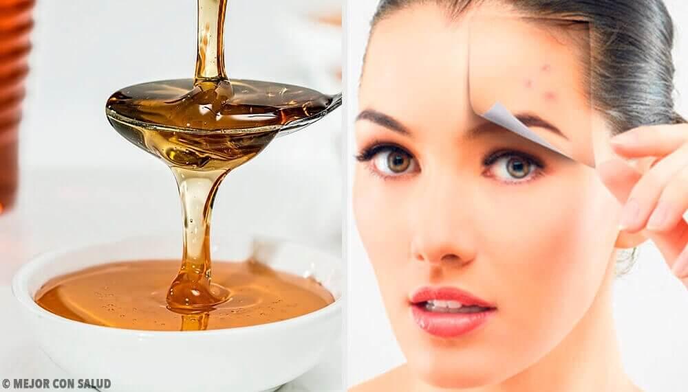 4 luonnollista reseptiä, joilla saat terveen ihon