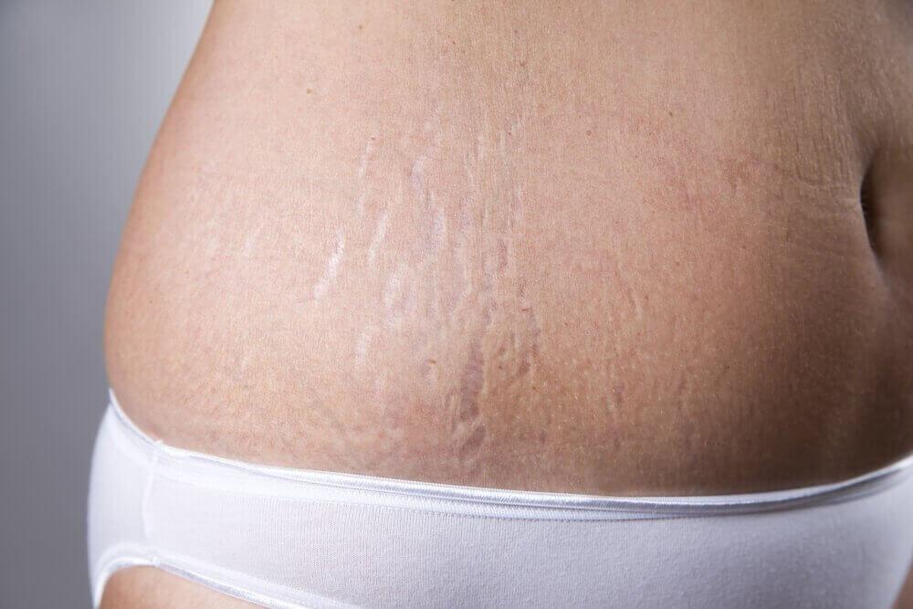 voit käyttää E-vitamiinikapseleita iholla raskausarpiin
