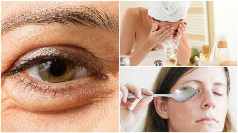 6 luonnollista tapaa häivyttää silmäpusseja