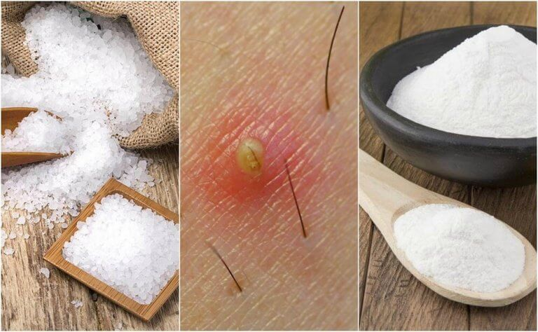 5 luonnollista hoitoa sisäänpäin kasvaneille ihokarvoille