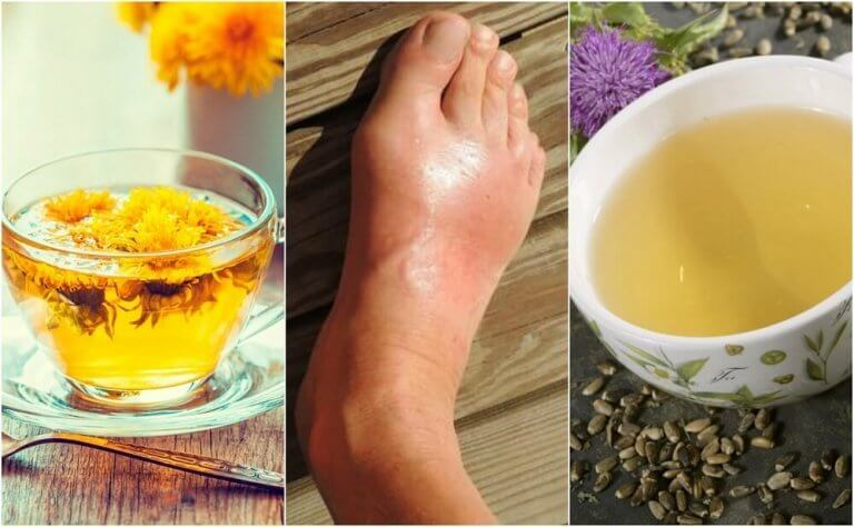 5 parasta teetä vähentämään virtsahappoa