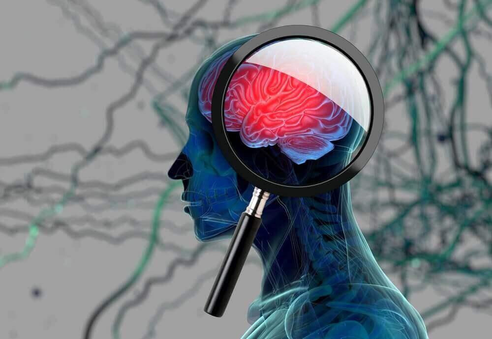Alzheimerin oireet - lähimuistin heikentyminen.