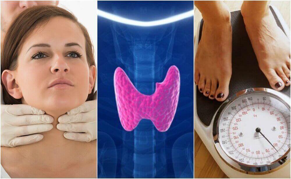10 merkkiä kilpirauhasen vajaatoiminnasta