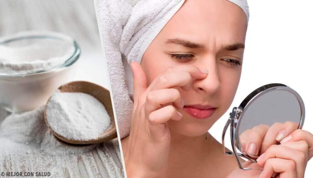 4 naamiota ruokasoodasta mustapäiden poistamiseksi