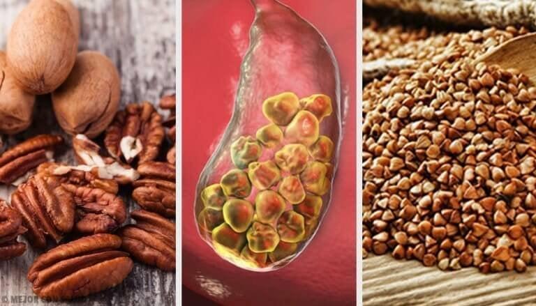 6 ruokaa sappikiviongelman hoitoon