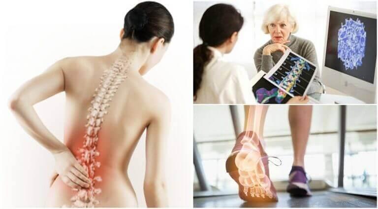 osteoporoosi voi aiheuttaa selkäkipua