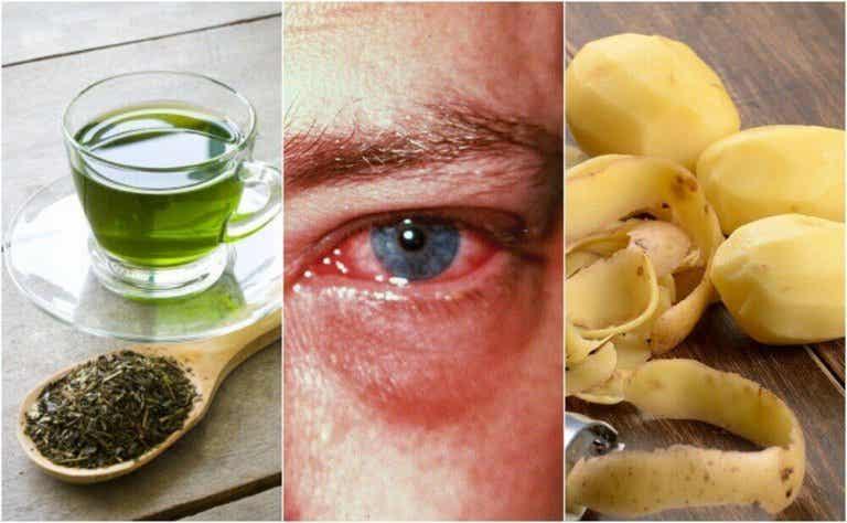 8 parasta kotikonstia silmätulehdukseen