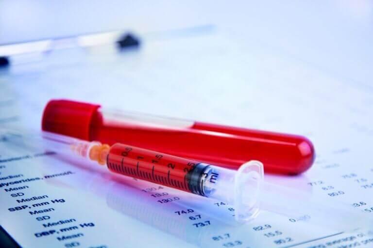 7 kurkuman hyötyä: verenhyytyminen