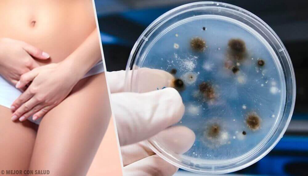 Emätintulehdukset: tulehdustyypit ja aiheuttajat