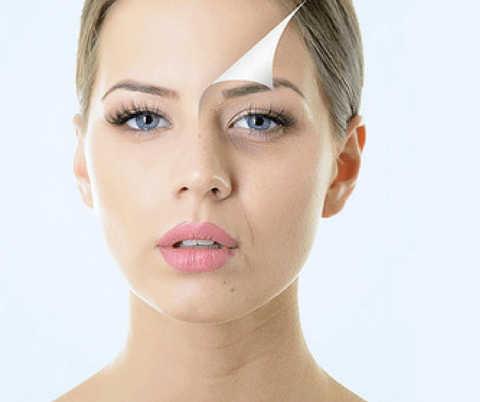 Vitamiinit, joita iho tarvitsee pysyäkseen terveenä