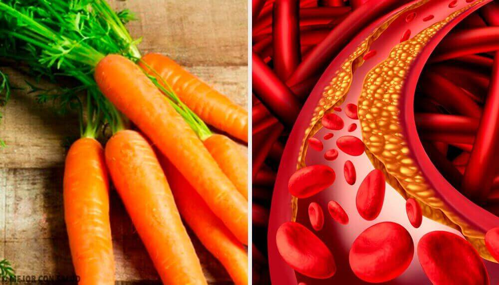 Luonnollisia ja helppoja tapoja hallita kolesterolia