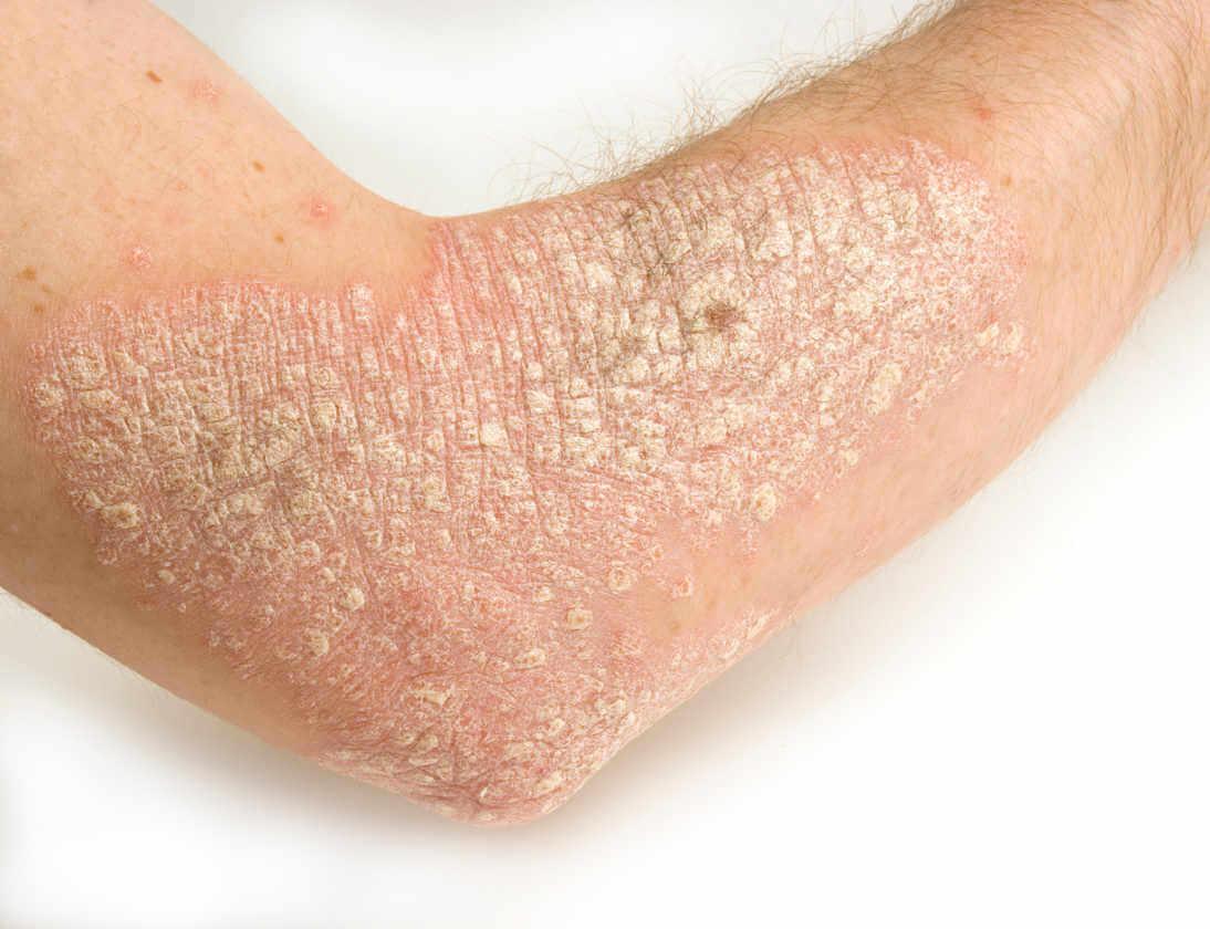 paha psoriasis käsivarressa