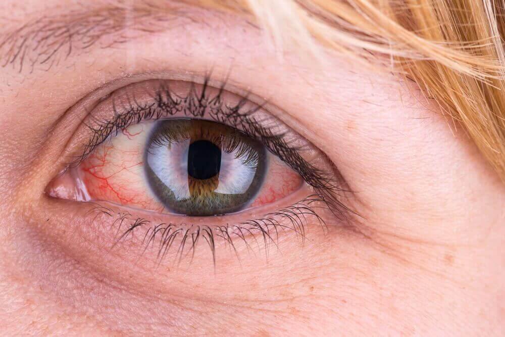 sidekalvontulehdus silmässä