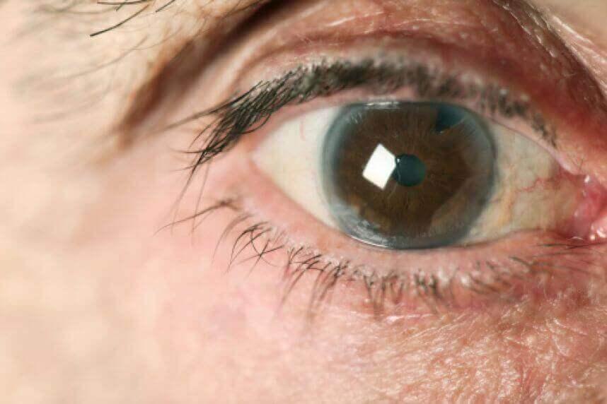 silmässä glaukoomaa