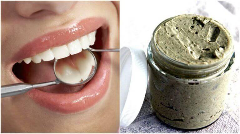 Luonnollisia keinoja ehkäistä hampaiden reikiintyminen