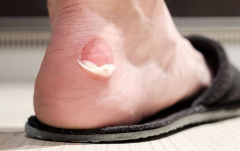 uudet kengät aiheuttavat rakkuloita