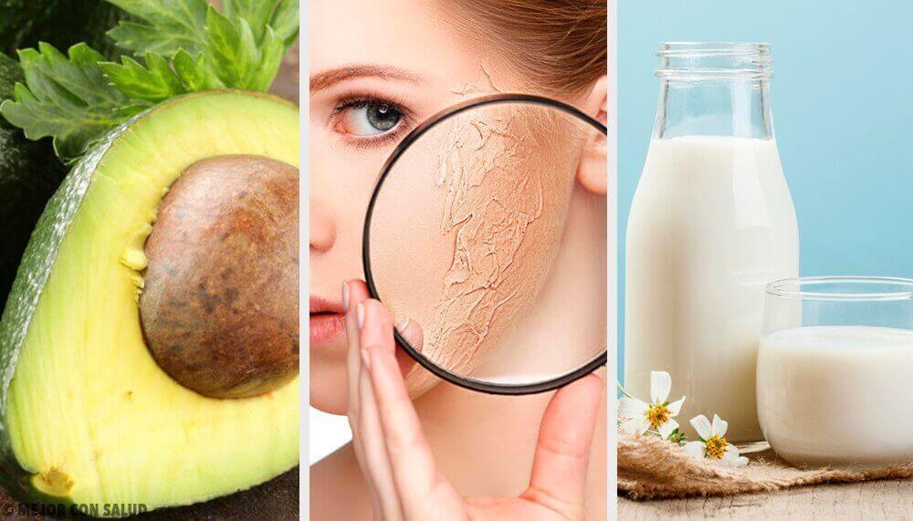10 tapaa kosteuttaa ihoa kotitekoisilla luonnollisilla hoidoilla