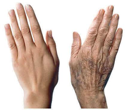 7 suositusta ikääntyvien käsien hoitamiseksi
