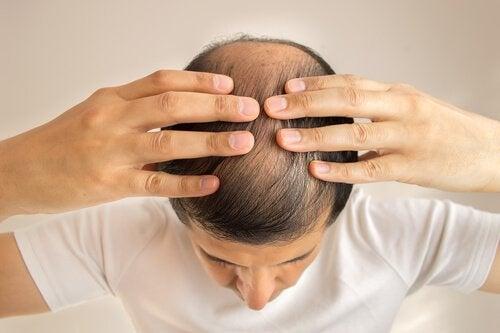 mies tuskastuu hiustenlähdöstä