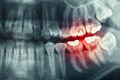 hampaiden narskuttelun seuraukset