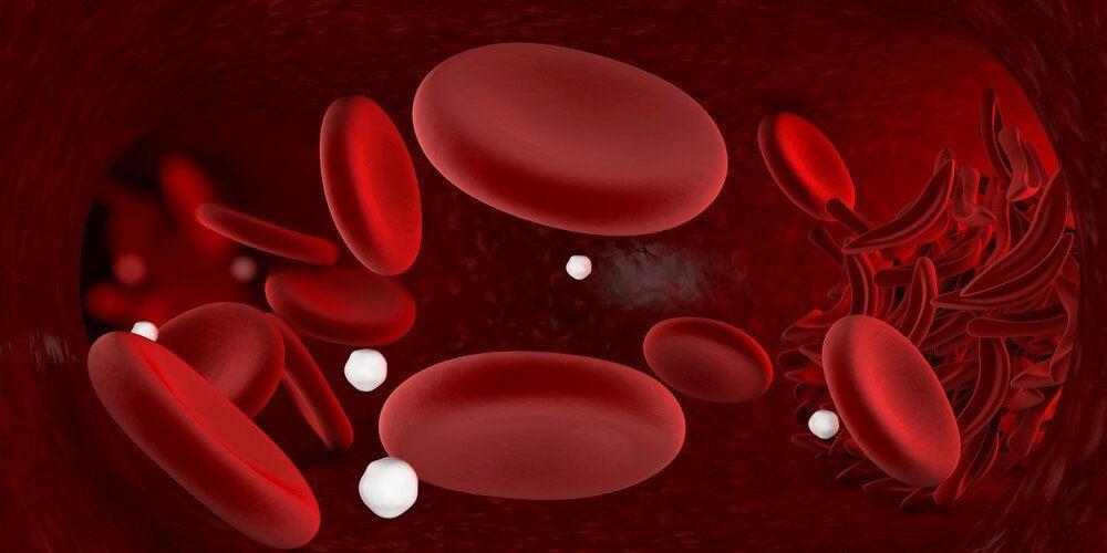 Pettämätön kotihoitokeino anemiaan