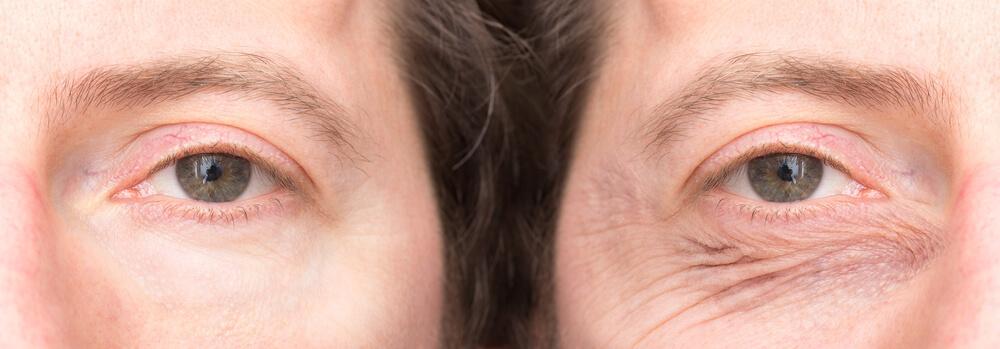 kiinteytä roikkuvat silmäluomet