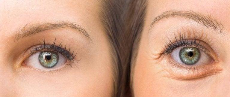 Kiinteytä roikkuvat silmäluomet näiden viiden luonnollisen ainesosan avulla