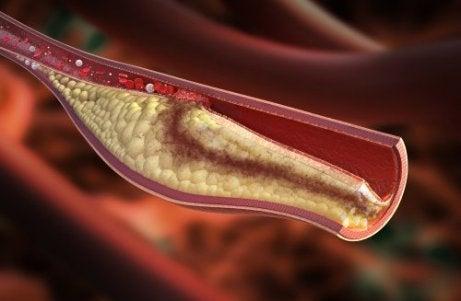 kolesteroli verisuonessa
